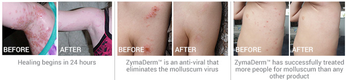 Before & After Use of Zymaderm products