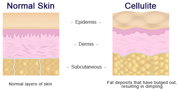 Cellu smooth for Cellulite