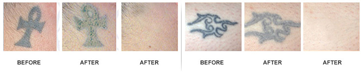Remove Tattoo denton  FL  Get if off sooner fast and safely further DIY Pensacola Tattoo Removal   Tattoo Removal Cream   Tattoo in addition Does Cvs Have Tattoo Removal Cream additionally tattoo removal cream ebay uk   tattoo removal does it work moreover Does Tattoo Removal Cream Really Work    InkDoneRight also QuickFade besides 5 Natural Tattoo Removal Remes to Do at Home together with tattoo removal cream in mauritius   Best Laser Tattoo Removal in addition Tattoo Removal Machine For Dark Skin   Skin Arts besides Does Tattoo Removal Cream Really Work    InkDoneRight also New cream painlessly removes tattoos. on quickfade tattoo removal cream
