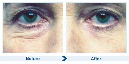 Before & After Use of  Skin Doctors Eyelift Serum