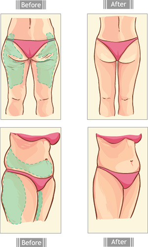 Before & After Use of Liposuction