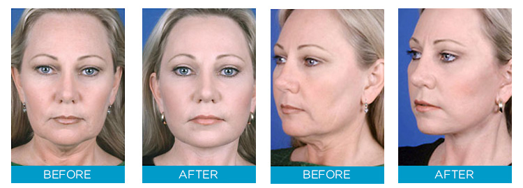 Before & After Use of Skin Doctors Facelift Serum