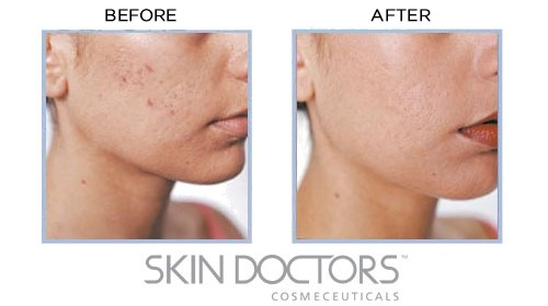 Before & After Use of Skin Doctors Gamma Hydroxy