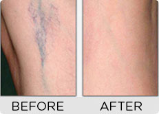 Before & After Use of Skin Doctors Capillary Clear