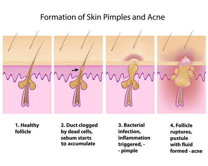 Oily Food Causes Acne Myth Or Fact Causes Of Acne Skincaretotal