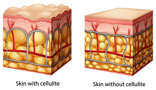 Reduce Cellulite in Skin